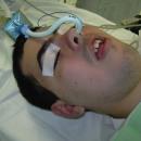 Fig.-45-Intubazione-naso-tracheale